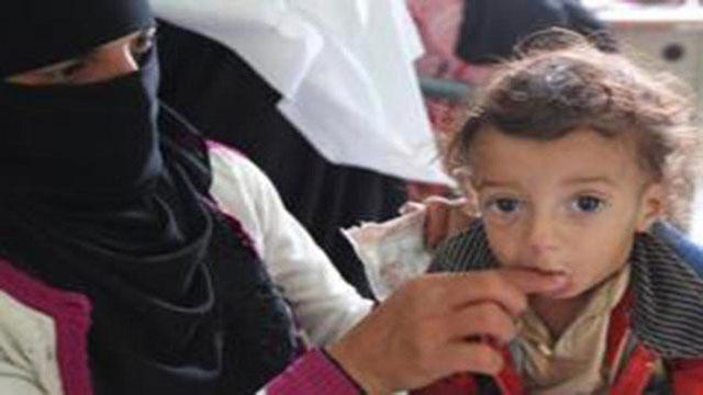 ইয়েমেনে গৃহযুদ্ধে দুর্ভিক্ষের কবলে অর্ধকোটি শিশু