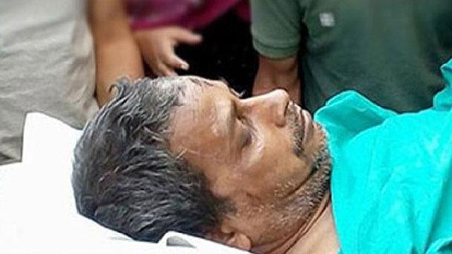 বিমান দুর্ঘটনায় আহত কবির লাইফ সাপোর্টে