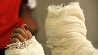 2 suspects remanded over Nusrat's murder