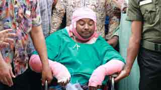 US-Bangla plane crash survivor Shaheen dies