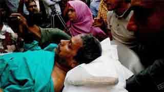 US-Bangla plane crash survivor Kabir on life support